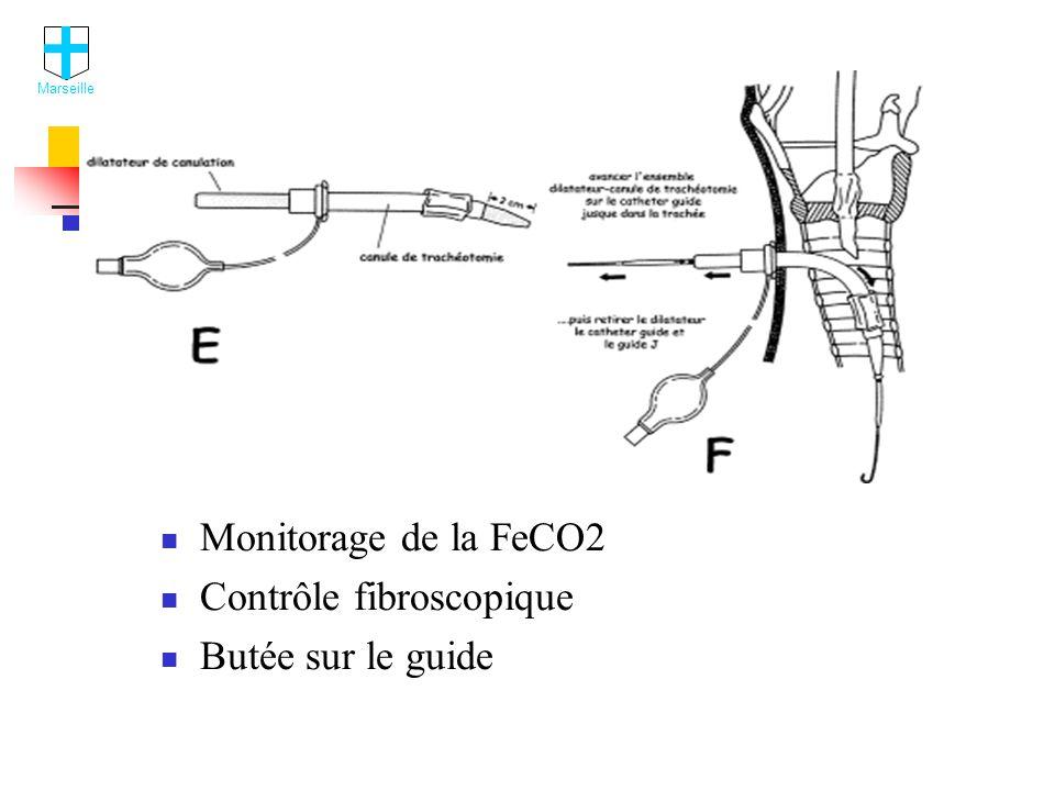Contrôle fibroscopique Butée sur le guide