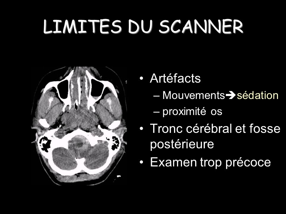 LIMITES DU SCANNER Artéfacts Tronc cérébral et fosse postérieure