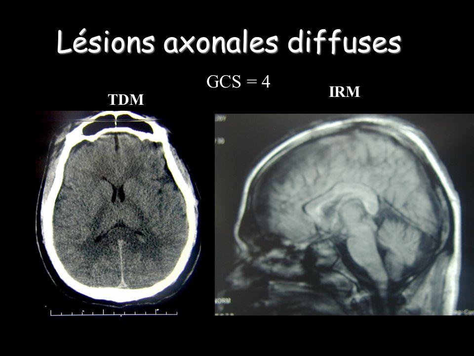 Lésions axonales diffuses