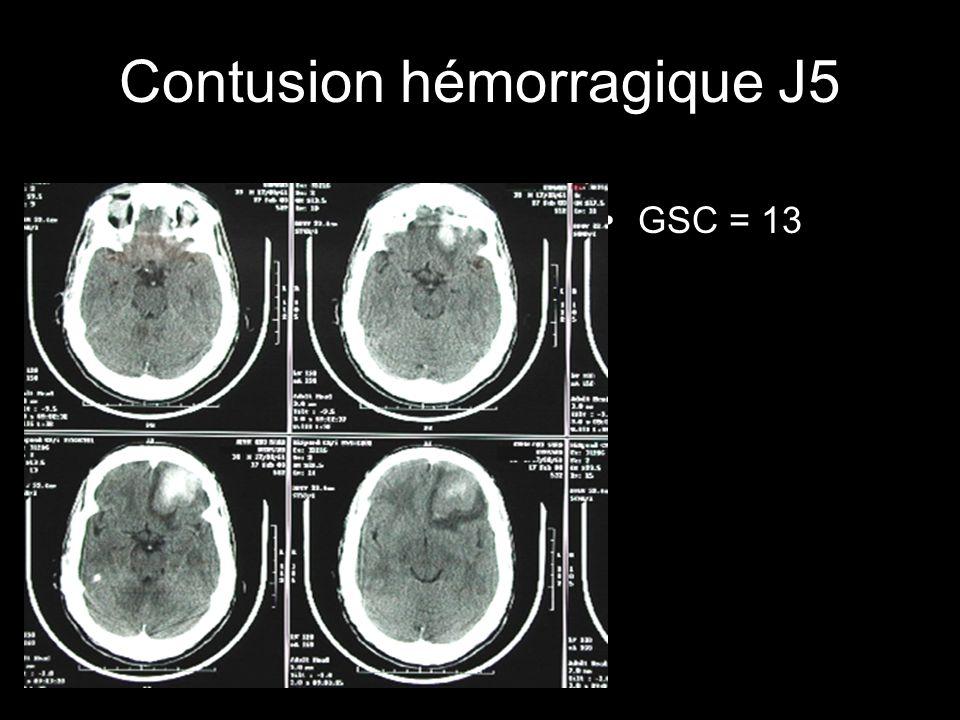 Contusion hémorragique J5