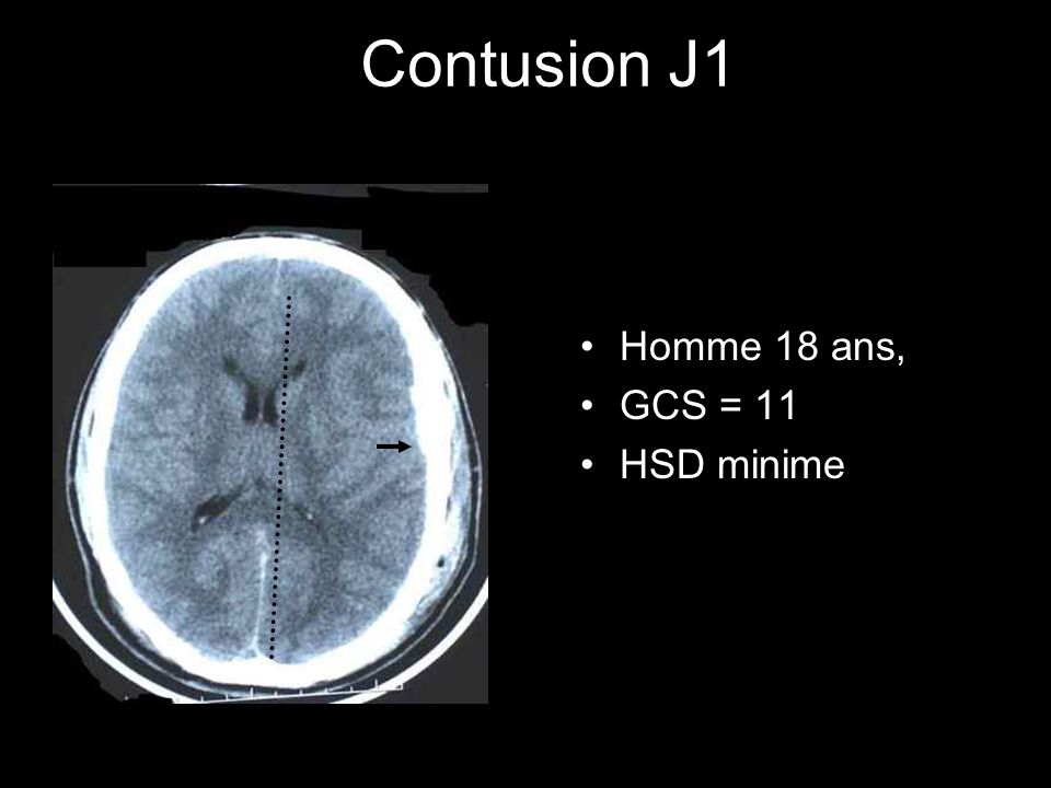 Contusion J1 Homme 18 ans, GCS = 11 HSD minime