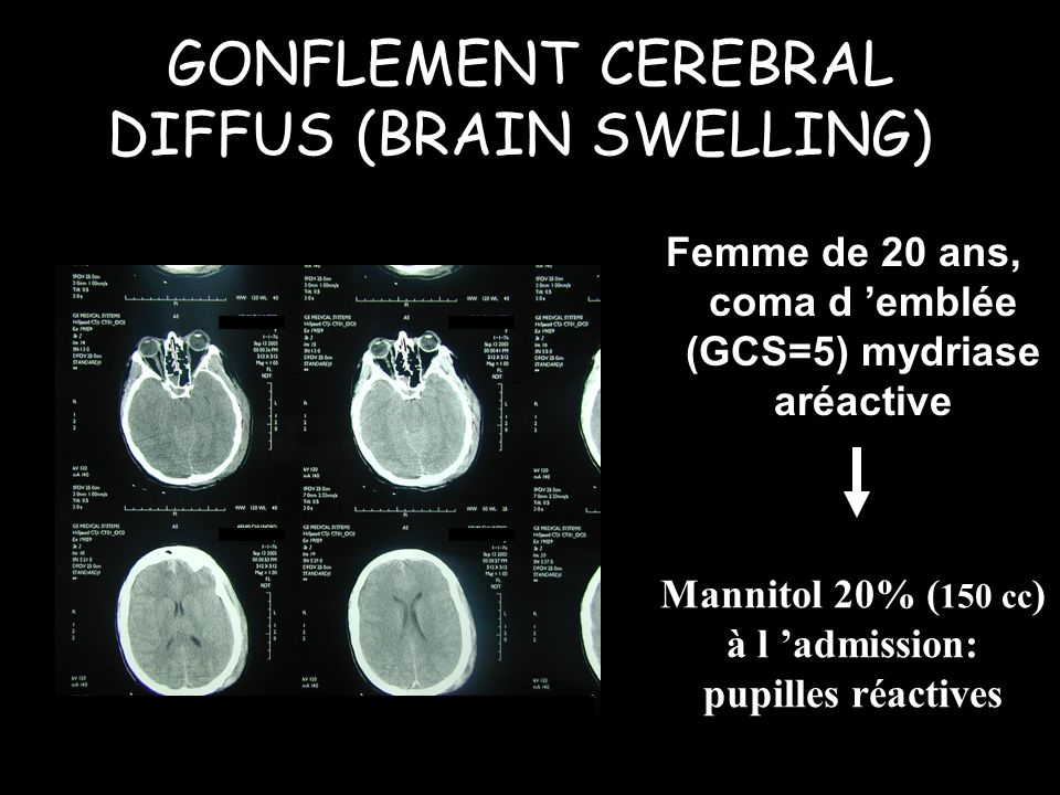 GONFLEMENT CEREBRAL DIFFUS (BRAIN SWELLING))