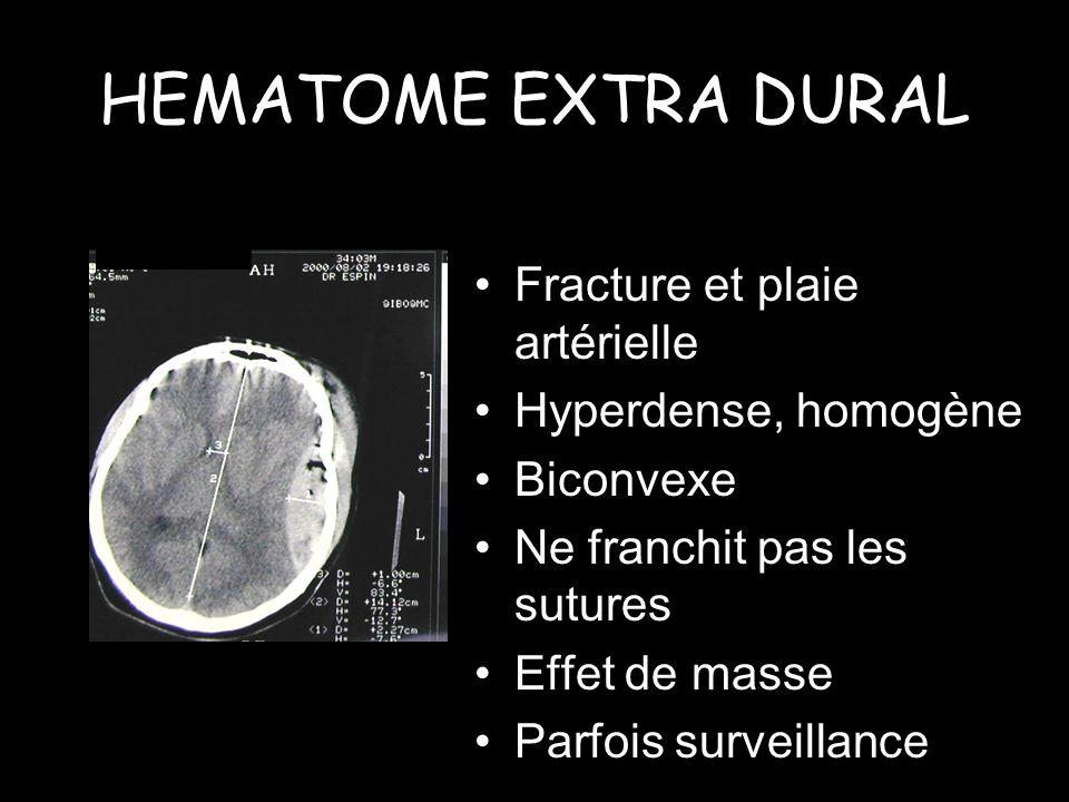 HEMATOME EXTRA DURAL Fracture et plaie artérielle Hyperdense, homogène