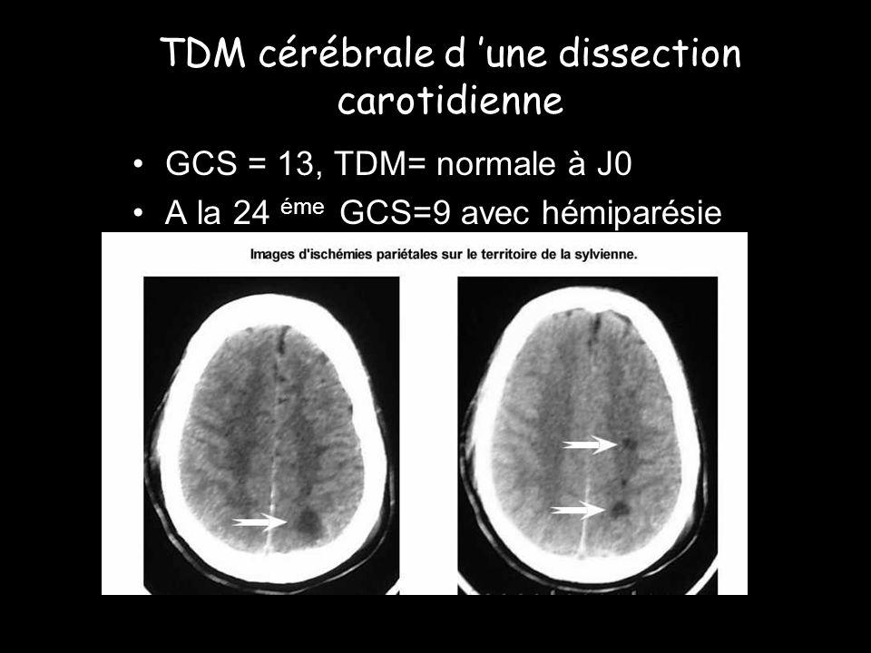 TDM cérébrale d 'une dissection carotidienne