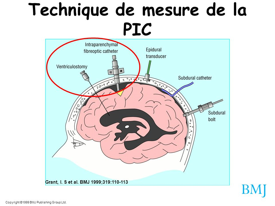 Technique de mesure de la PIC