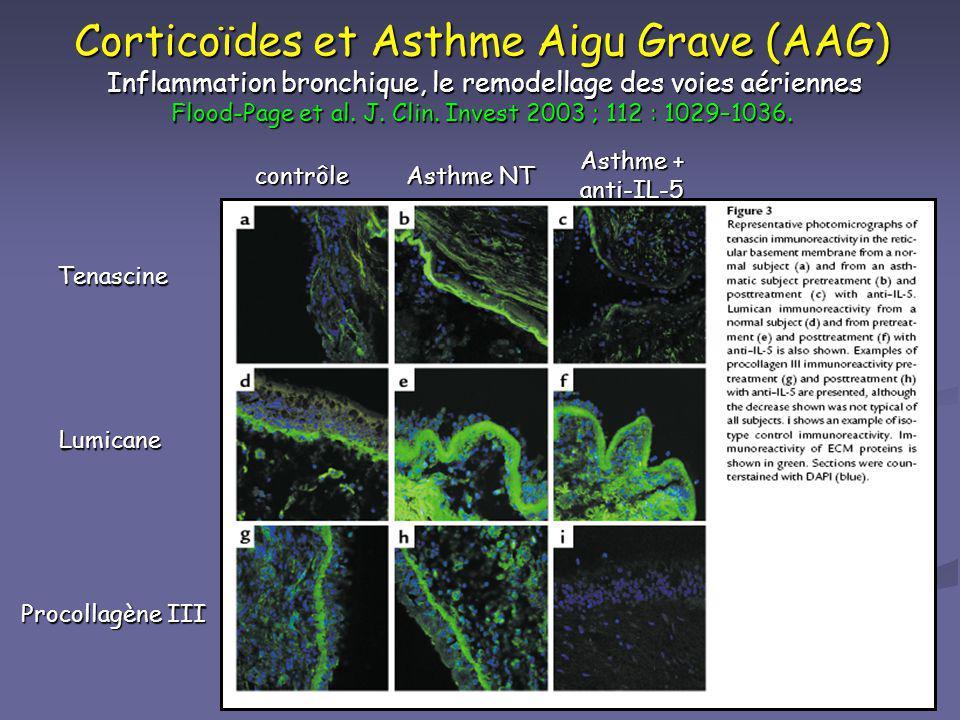 Corticoïdes et Asthme Aigu Grave (AAG) Inflammation bronchique, le remodellage des voies aériennes Flood-Page et al. J. Clin. Invest 2003 ; 112 : 1029–1036.