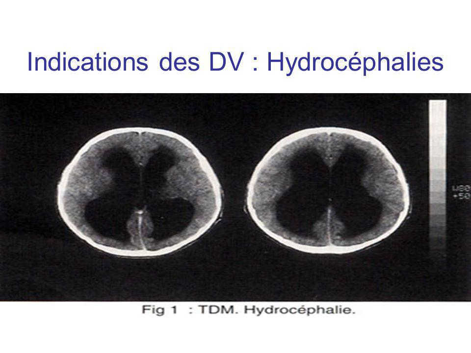 Indications des DV : Hydrocéphalies