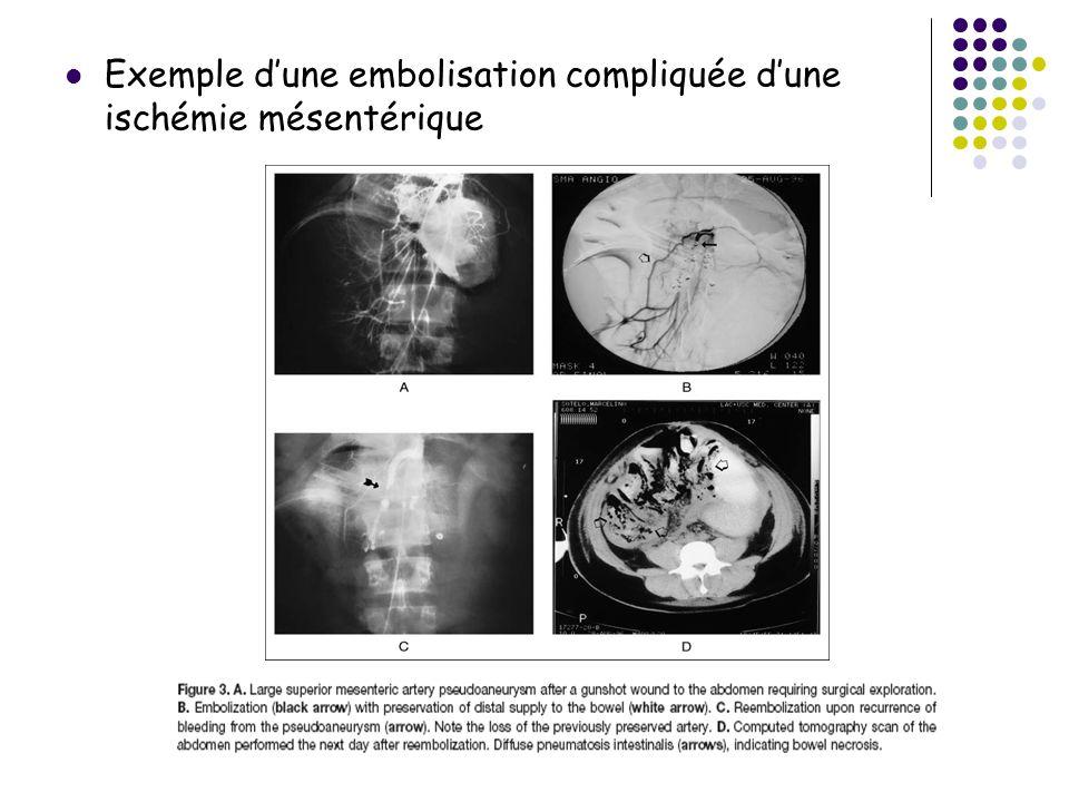 Exemple d'une embolisation compliquée d'une ischémie mésentérique
