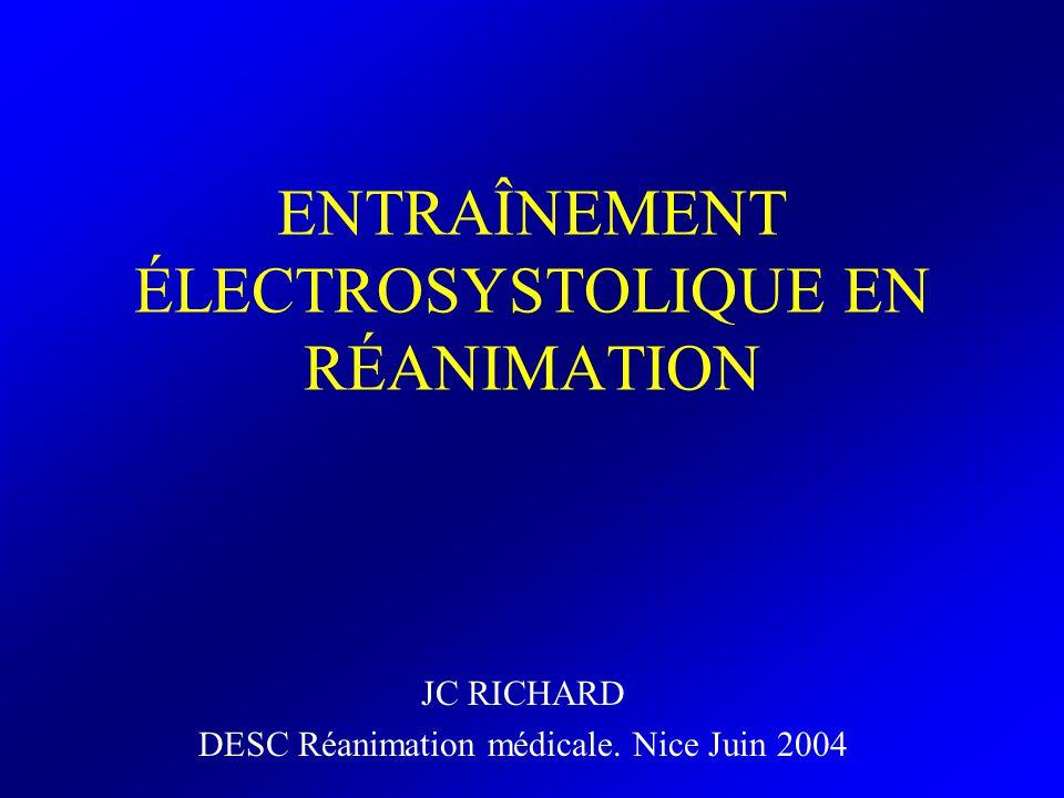 ENTRAÎNEMENT ÉLECTROSYSTOLIQUE EN RÉANIMATION