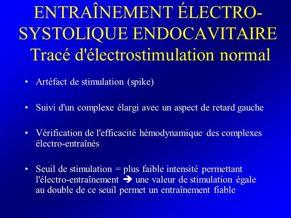 ENTRAÎNEMENT ÉLECTRO-SYSTOLIQUE ENDOCAVITAIRE Tracé d électrostimulation normal