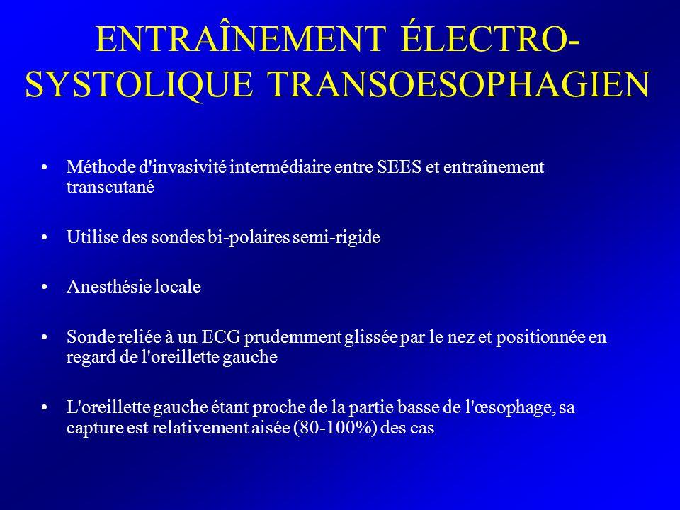 ENTRAÎNEMENT ÉLECTRO-SYSTOLIQUE TRANSOESOPHAGIEN