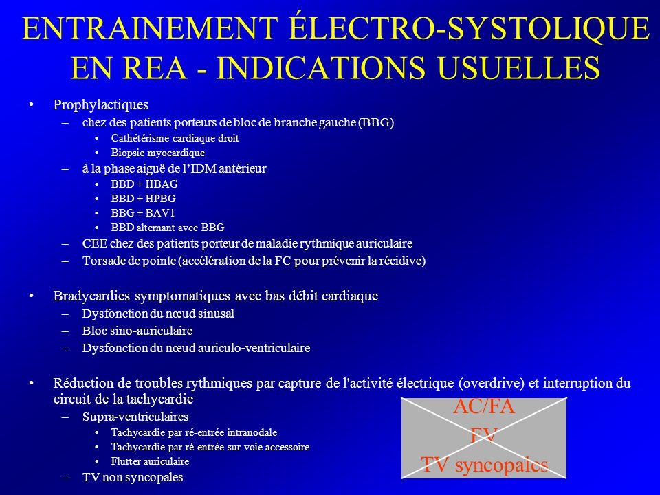 ENTRAINEMENT ÉLECTRO-SYSTOLIQUE EN REA - INDICATIONS USUELLES