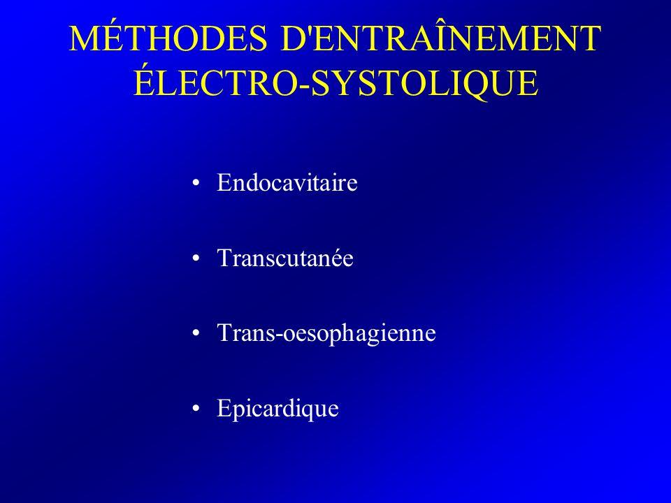 MÉTHODES D ENTRAÎNEMENT ÉLECTRO-SYSTOLIQUE