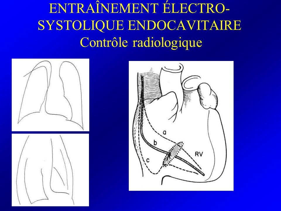 ENTRAÎNEMENT ÉLECTRO-SYSTOLIQUE ENDOCAVITAIRE Contrôle radiologique