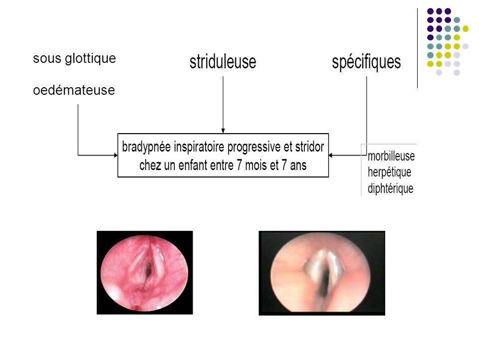 sous glottique oedémateuse