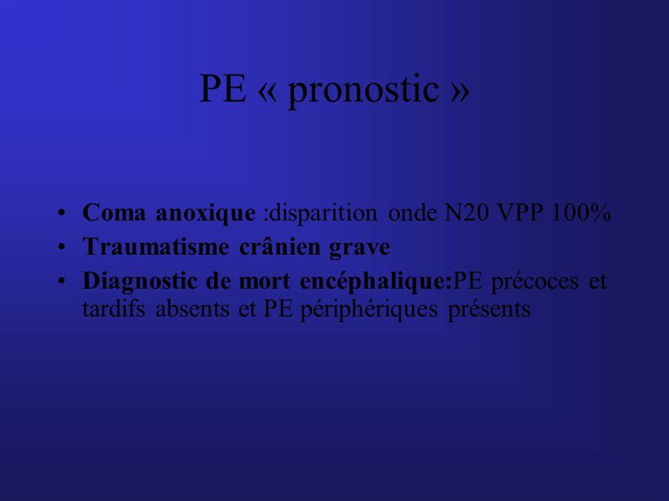 PE « pronostic » Coma anoxique :disparition onde N20 VPP 100%