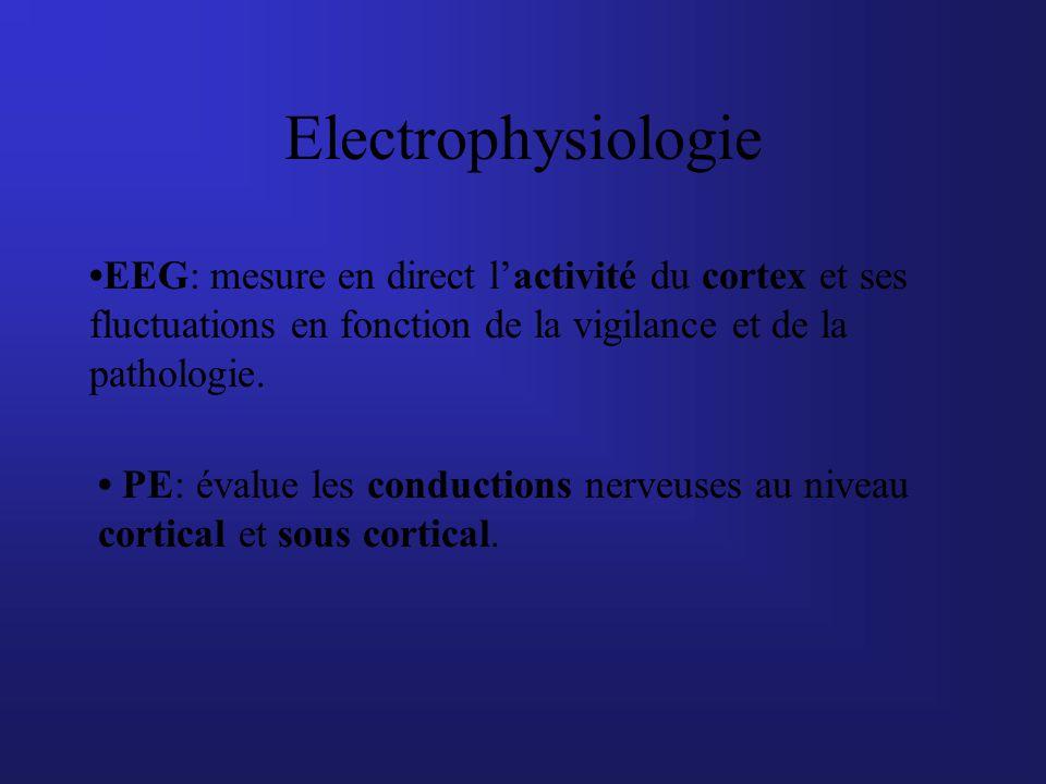 Electrophysiologie •EEG: mesure en direct l'activité du cortex et ses fluctuations en fonction de la vigilance et de la pathologie.