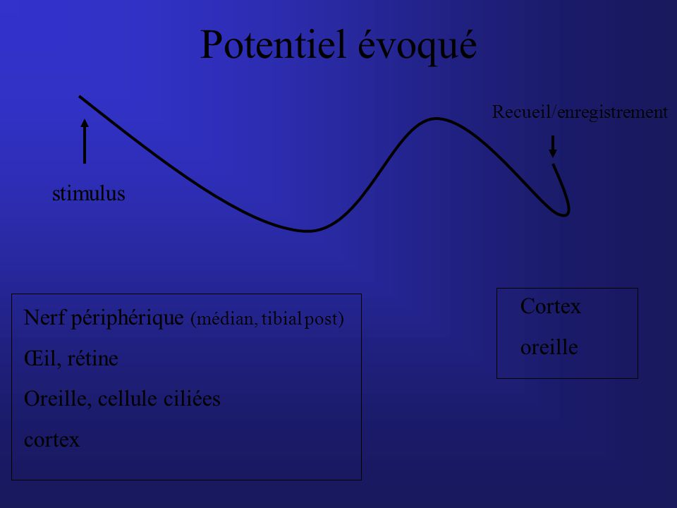 Potentiel évoqué stimulus Cortex