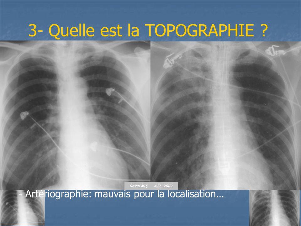 3- Quelle est la TOPOGRAPHIE