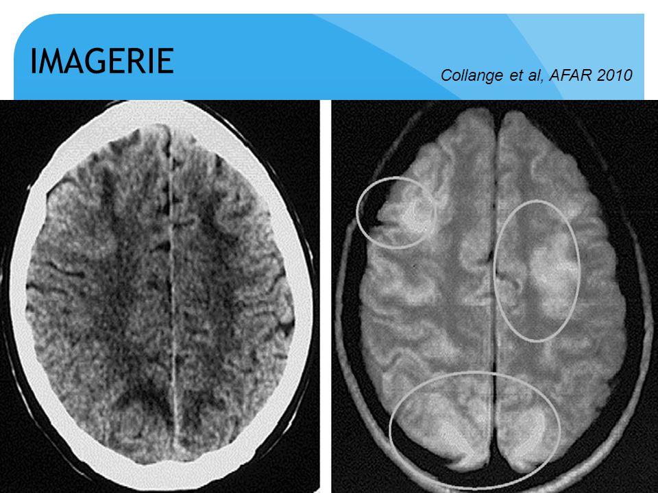 IMAGERIE Collange et al, AFAR 2010