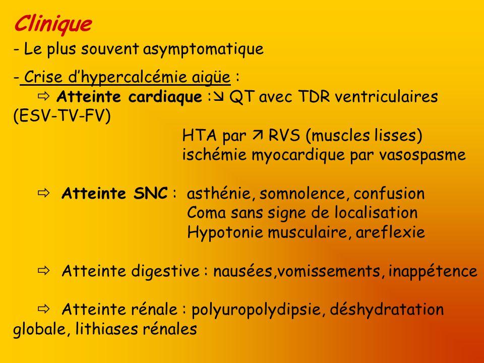 Clinique Le plus souvent asymptomatique Crise d'hypercalcémie aigüe :