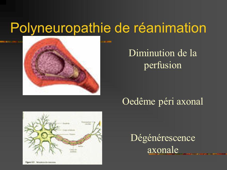 Polyneuropathie de réanimation