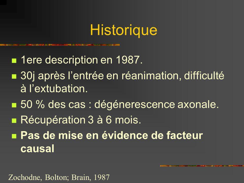 Zochodne, Bolton; Brain, 1987