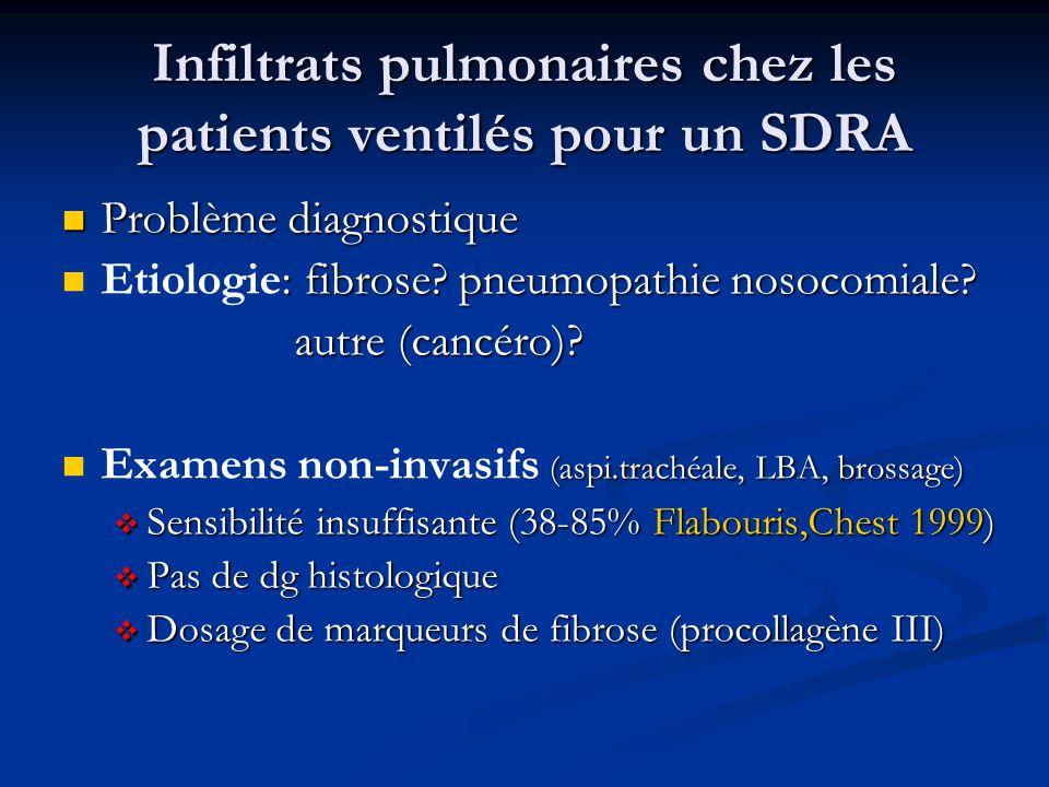 Infiltrats pulmonaires chez les patients ventilés pour un SDRA