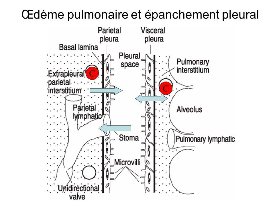 Œdème pulmonaire et épanchement pleural