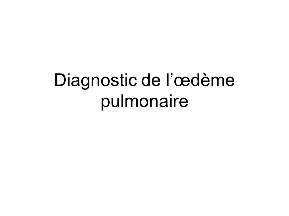 Diagnostic de l'œdème pulmonaire