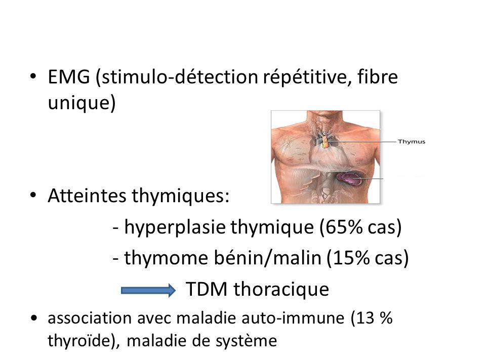 EMG (stimulo-détection répétitive, fibre unique)