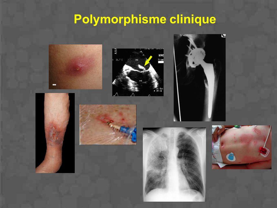 Polymorphisme clinique
