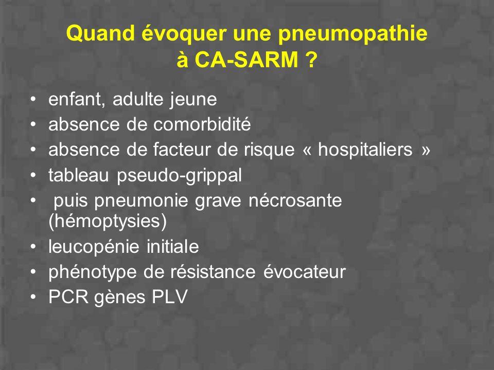 Quand évoquer une pneumopathie à CA-SARM