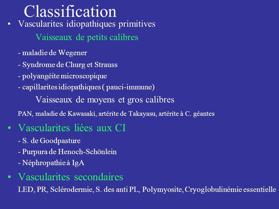 Classification - maladie de Wegener Vascularites liées aux CI