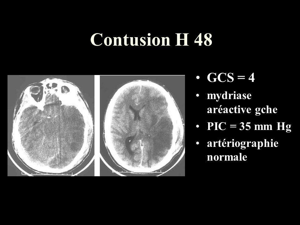 Contusion H 48 GCS = 4 mydriase aréactive gche PIC = 35 mm Hg