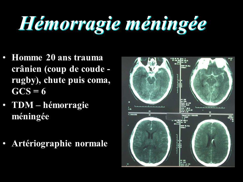 Hémorragie méningée Homme 20 ans trauma crânien (coup de coude - rugby), chute puis coma, GCS = 6. TDM – hémorragie méningée.