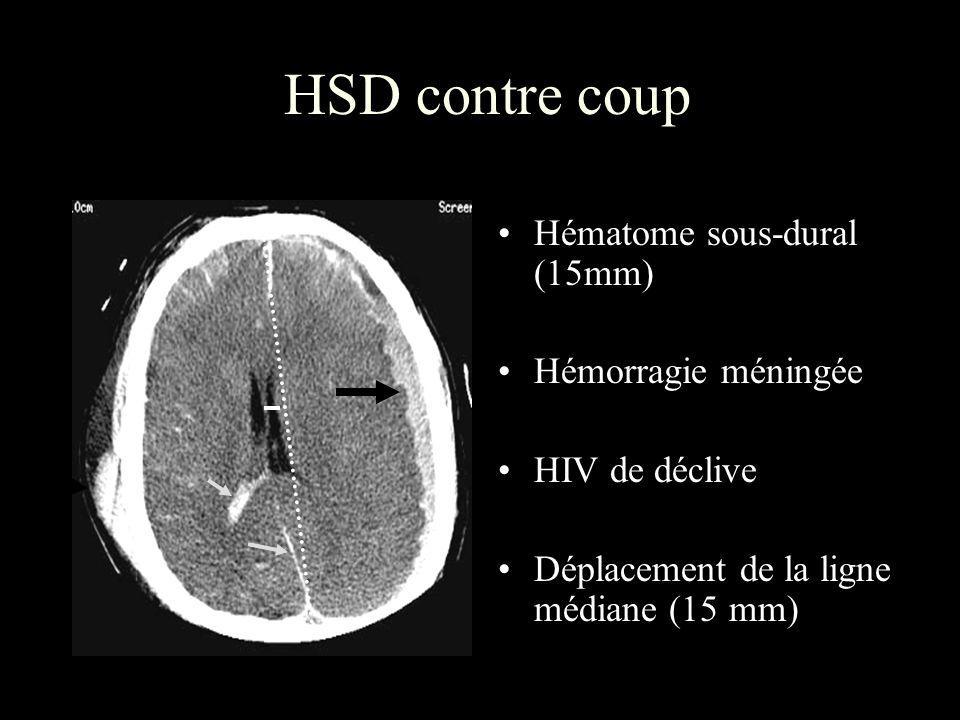 HSD contre coup Hématome sous-dural (15mm) Hémorragie méningée