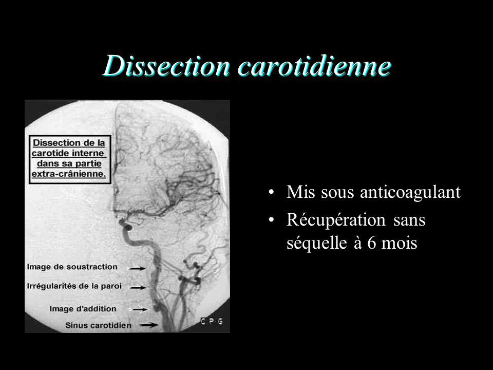 Dissection carotidienne