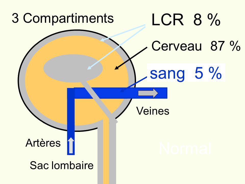 LCR 8 % sang 5 % Normal 3 Compartiments Cerveau 87 % Veines Artères