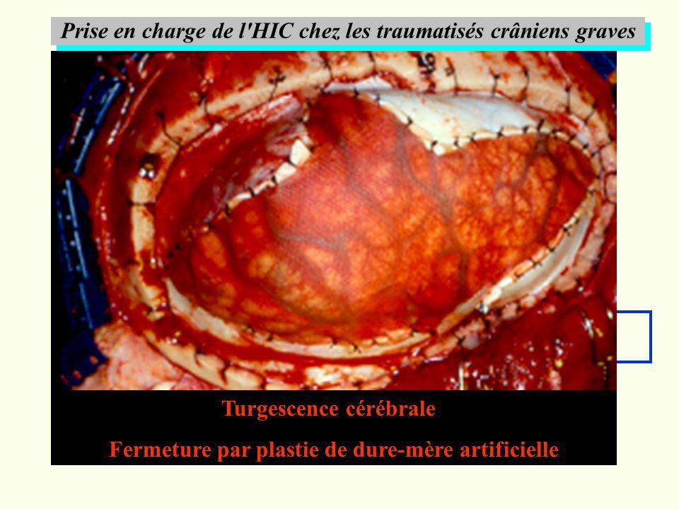 Prise en charge de l HIC chez les traumatisés crâniens graves