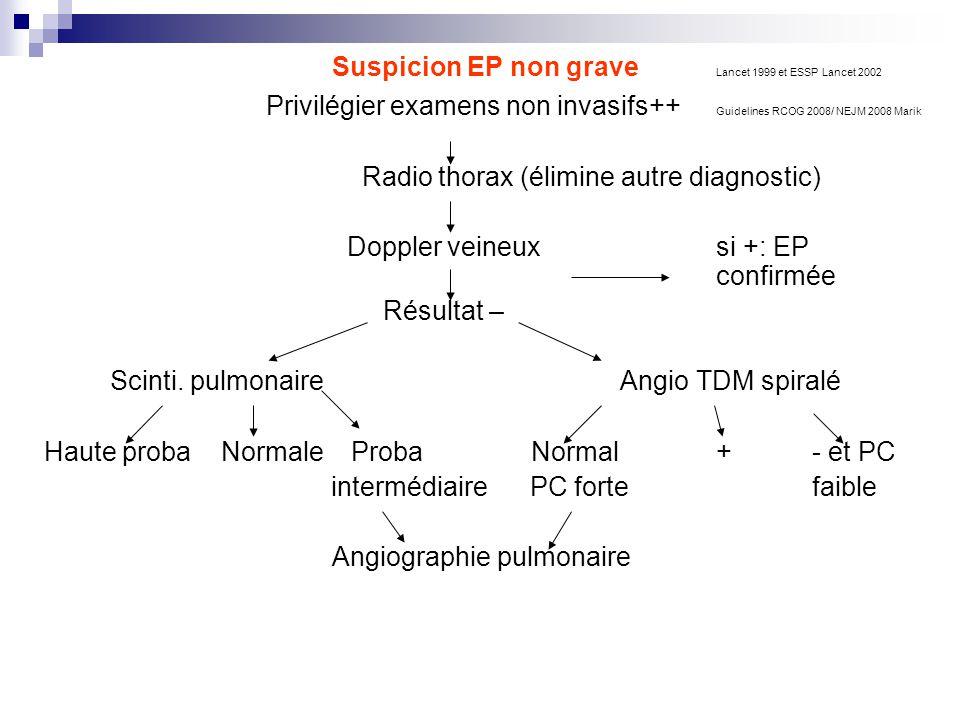 Suspicion EP non grave Lancet 1999 et ESSP Lancet 2002