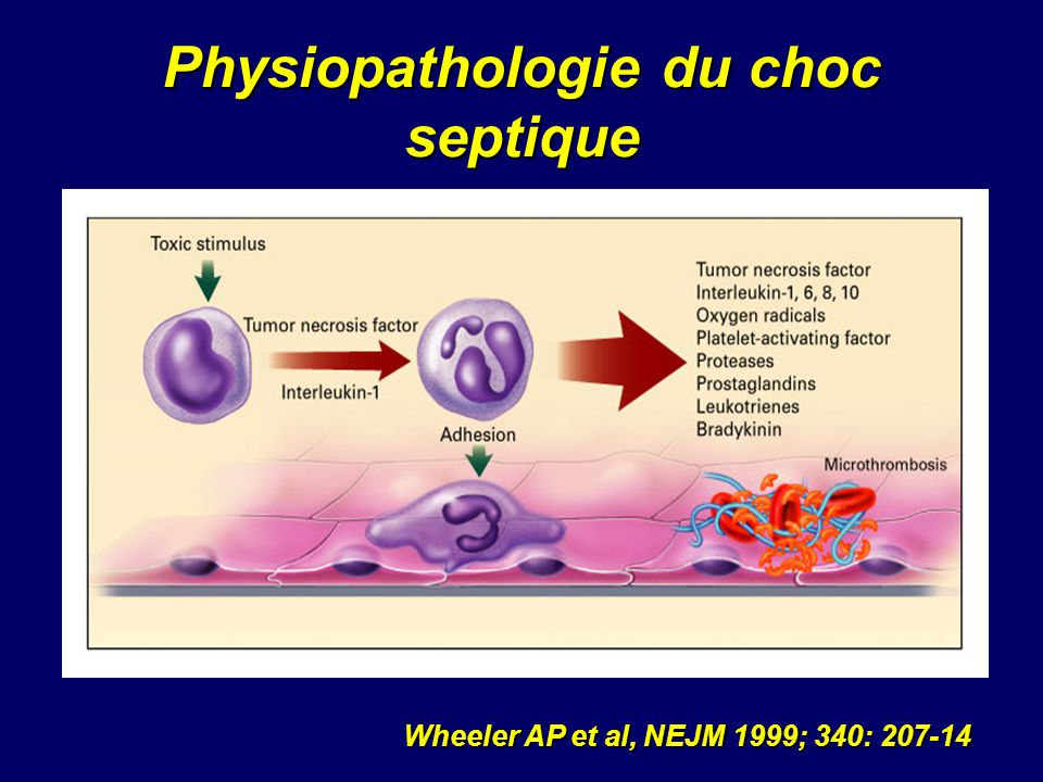 Physiopathologie du choc septique
