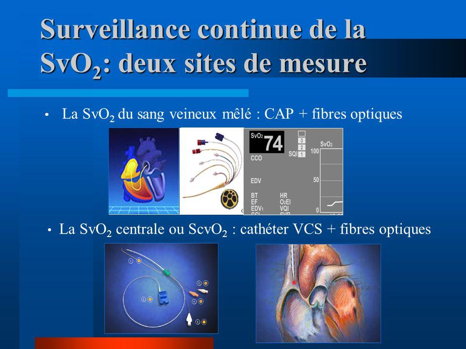 Surveillance continue de la SvO2: deux sites de mesure