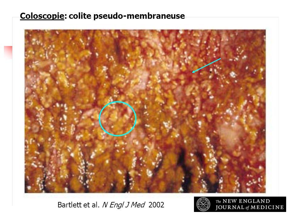 Bartlett et al. N Engl J Med 2002