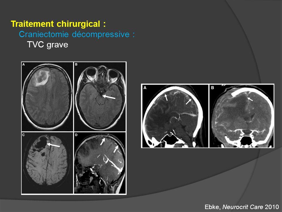 Traitement chirurgical : Craniectomie décompressive : TVC grave