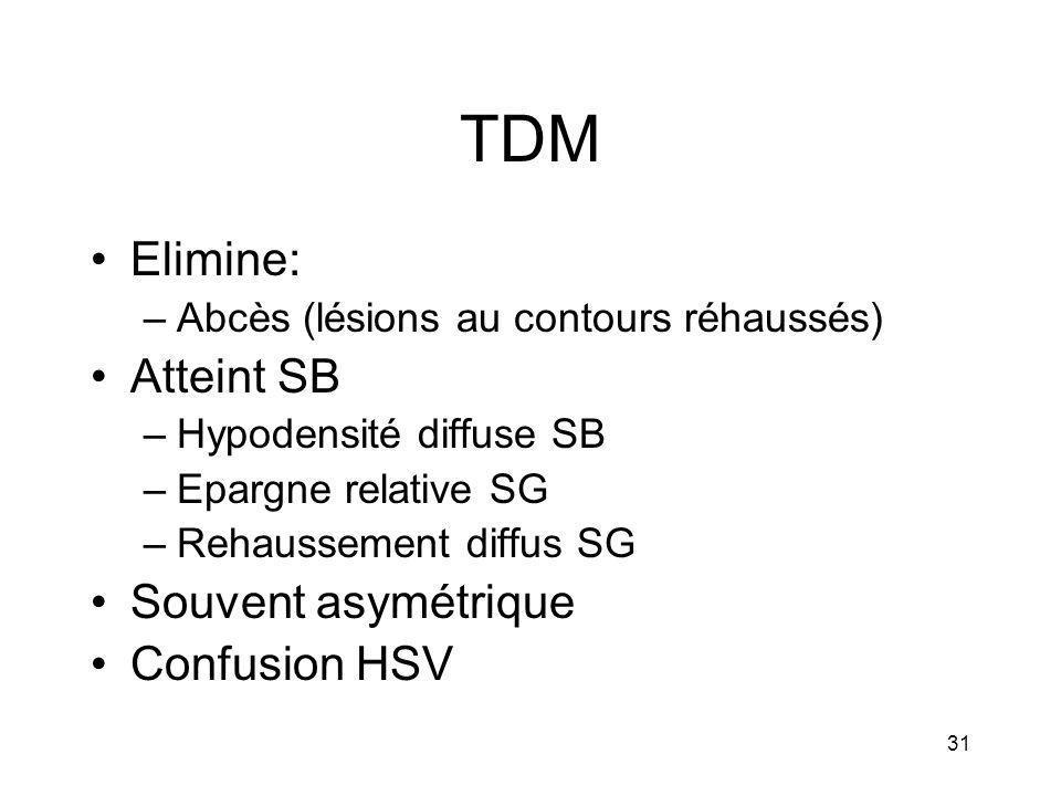 TDM Elimine: Atteint SB Souvent asymétrique Confusion HSV
