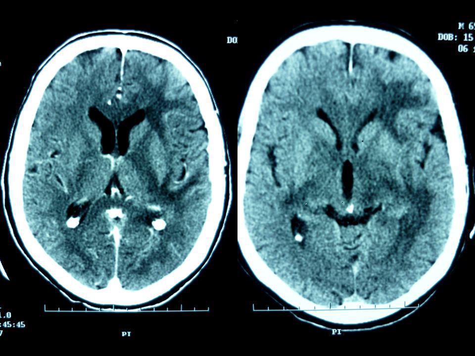 TDM J-4 Hypodensité diffuse de la substance blanche ne prenant pas le contraste