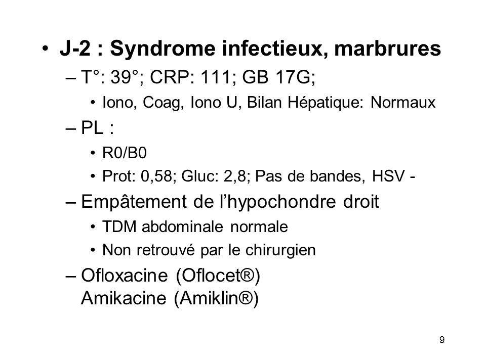 J-2 : Syndrome infectieux, marbrures