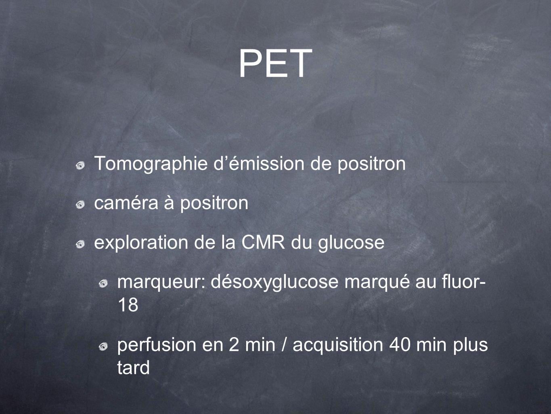 PET Tomographie d'émission de positron caméra à positron