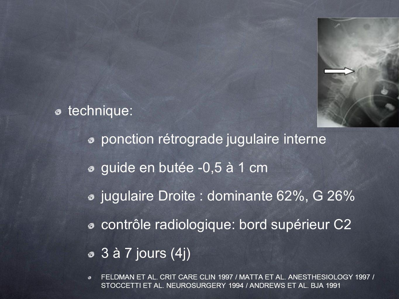ponction rétrograde jugulaire interne guide en butée -0,5 à 1 cm